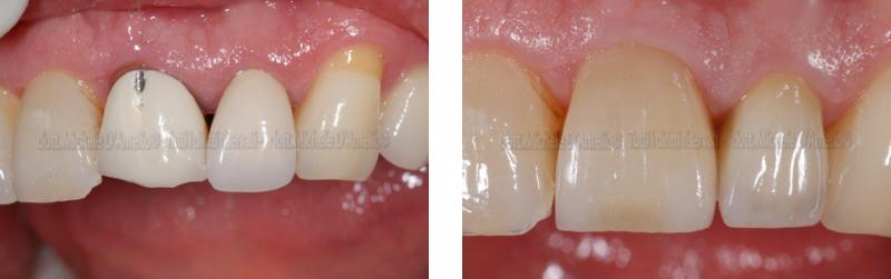 corone 1 dentista mestre, dentista venezia, studio dentistico mestre, studio dentistico venezia
