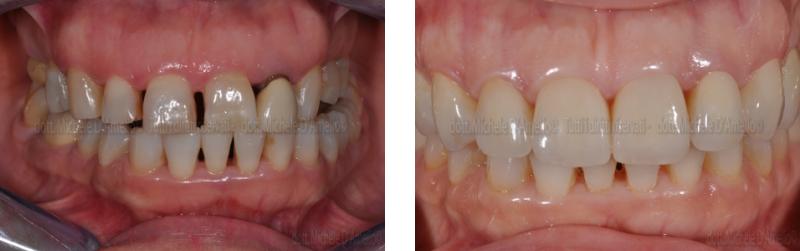 riabilitazione 3 dentista mestre, studio dentistico mestre, dentista venezia, studio dentistico venezia