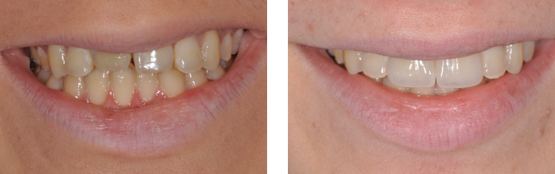faccette estetiche 7. dentista mestre studio dentistico mestre dentista venezia studio dentistico venezia