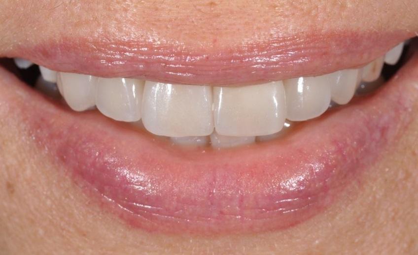 protesi-estetica-riadattata-dentista-mestre-dentista-venezia-studio-dentistico-mestre-studio-dentistico-venezia