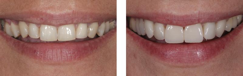 riabilitazione estetica 5. dentista mestre studio dentistico mestre dentista venezia studio dentistico venezia