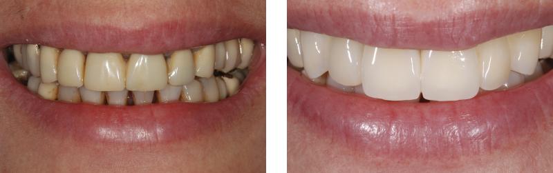 riebilitazione estetica 5, dentista mestre dentista venezia studio dentistico mestre studio dentistico venezia