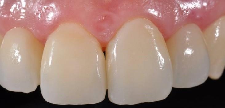 Agenesia dei laterali - Studio Dentistico Michele D'Amelio a Mestre Venezia