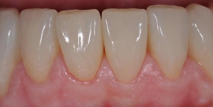 Faccette inferiori - Studio Dentistico Michele D'Amelio a Mestre Venezia