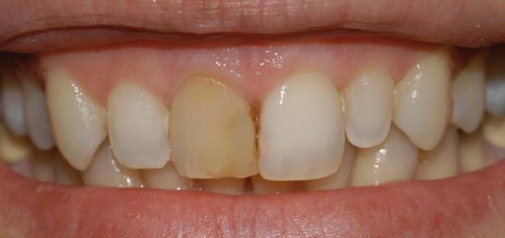 Sbiancamento e deviltalizzazione 01 - Studio Dentistico Michele D'Amelio a Mestre Venezia