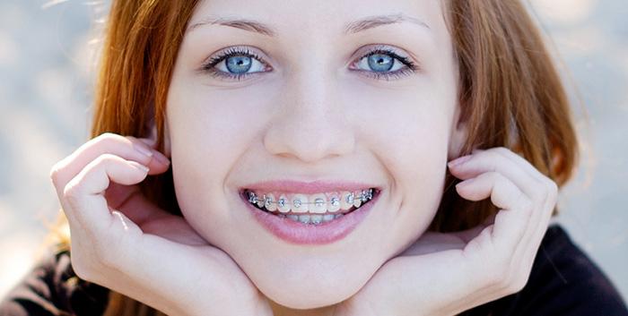 Ortodonzia foto articolo