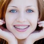 Ortodonzia foto laterale - Studio Dentistico Michele D'Amelio a Mestre Venezia