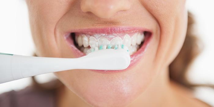 Come si lavano i denti - Studio Dentistico Michele D'Amelio a Mestre Venezia