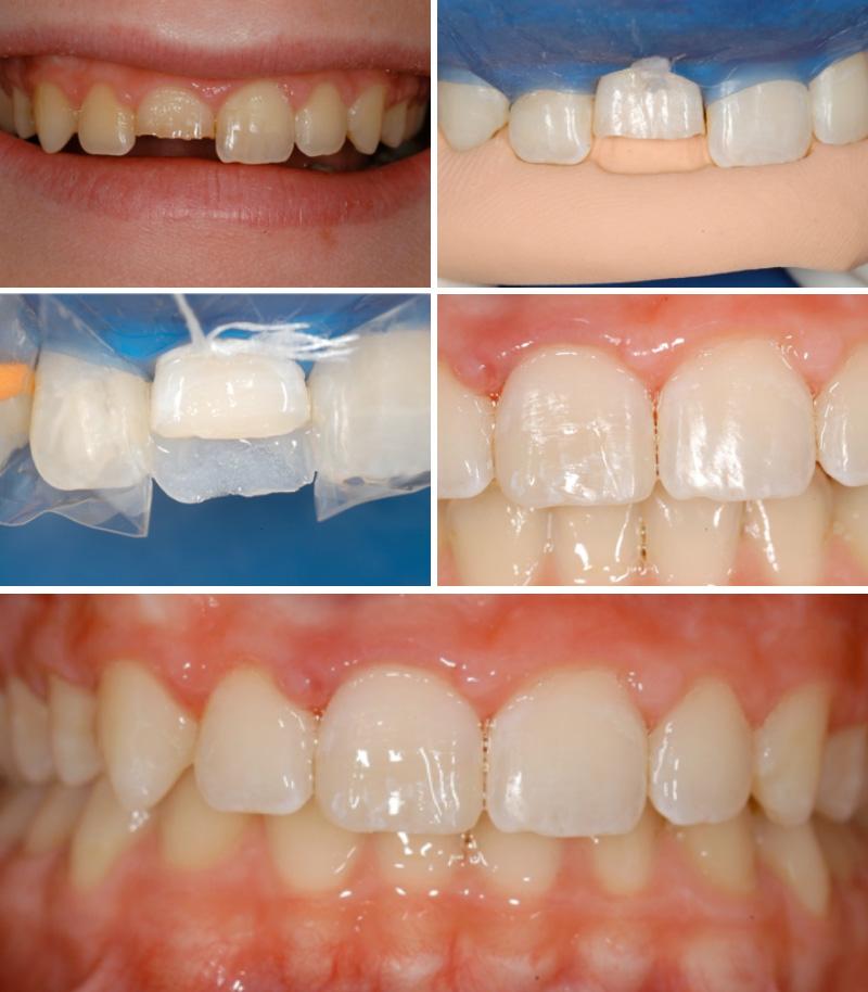traumi-dentali-02-studio-dentistico-michele-damelio-venezia-mestre
