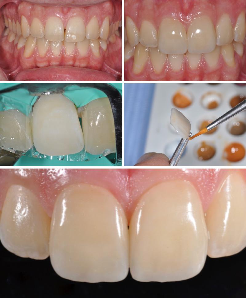 traumi-dentali-04-studio-dentistico-michele-damelio-venezia-mestre