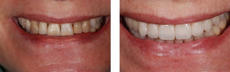 corone 3, dentista mestre, dentista venezia, studio dentistico mestre, studio dentistico venezia