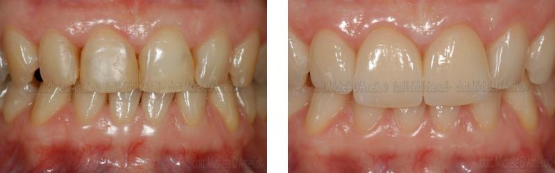 faccette-1-dentista-mestre-dentista-venezia-studio-dentistico-mestre-studio-dentistico-venezia