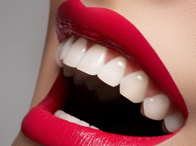 Il tuo sorriso in pocher ore - Studio Dentistico Michele D'Amelio a Mestre Venezia
