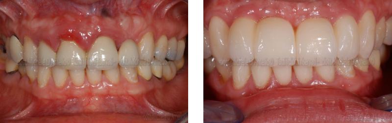 impianti-4-dentista-mestre-studio-dentistico-mestre-dentista-venezia-studio-dentistico-venezia