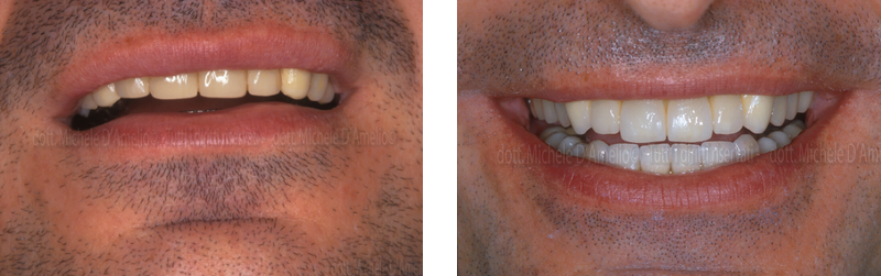 parodontologia 2 sentistamestre, dentista venezia, studio dentistico mestre, studio dentistico venezia