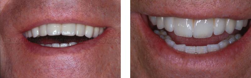 parodontologia 4 dentista mestre, dentista venezia, studio dentistico mestre, studio dentistico venezia.