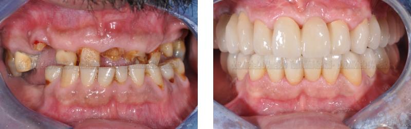riabilitazione 1 dentista mestre, studio dentistico mestre, dentista venezia, studio dentistico venezia