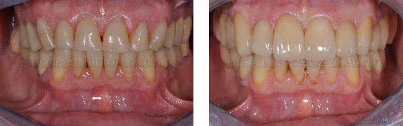riabilitazione 2 dentista mestre, studio dentistico mestre, dentista venezia, studio dentistico venezia