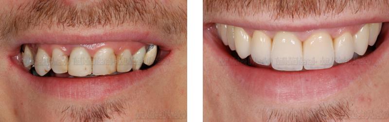 riabilitazione 4 dentista mestre, studio dentistico mestre, dentista venezia, studio dentistico venezia