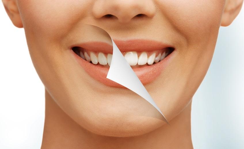 sbiancamento-dentista-mestre-studio-dentistico-mestre-studio-dentistico-venezia-dentista-venezia