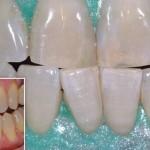 Sbiancamento in evidenza - Studio Dentistico Michele D'Amelio a Mestre Venezia