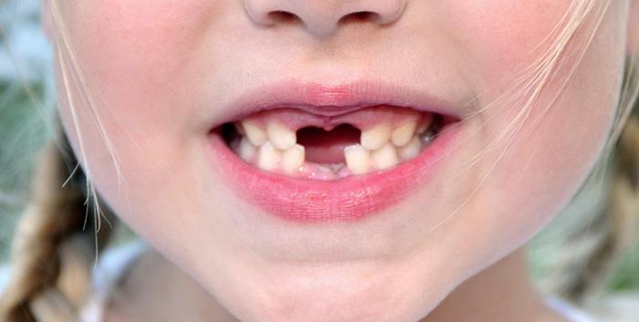 Bruxismo Copertina - Studio Dentistico Michele D'Amelio a Mestre Venezia