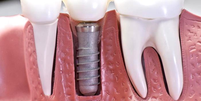 Domande sugli impianti dentali - Studio Dentistico Michele D'Amelio a Mestre Venezia