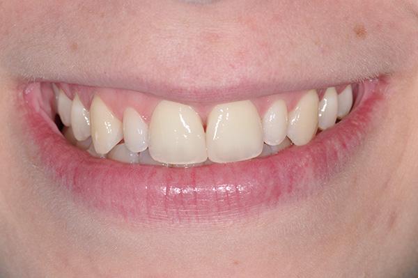 faccette-01-damelio dentista mestre