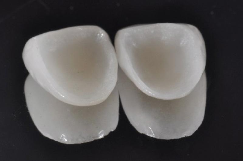 Esempio faccette fase 02 - Studio Dentistico Michele D'Amelio a Mestre Venezia