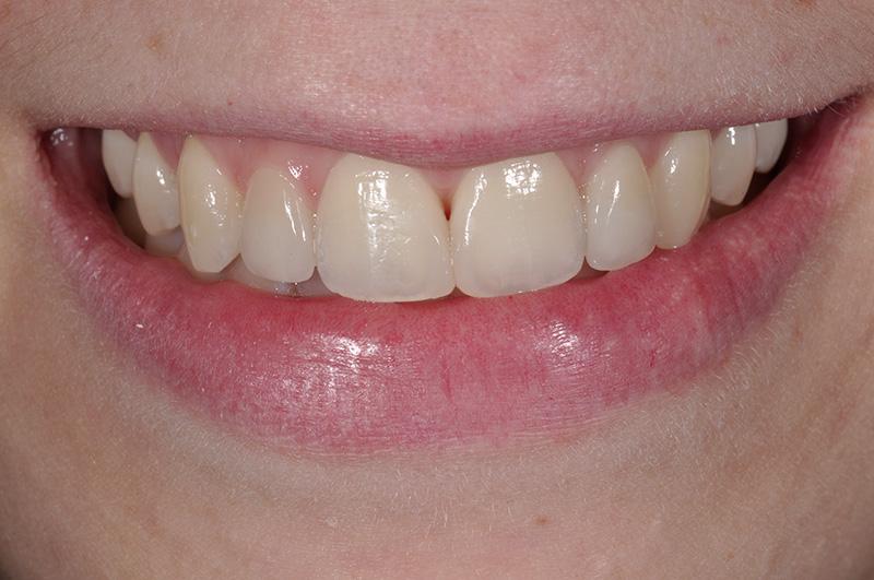 faccette-damelio dentista mestre