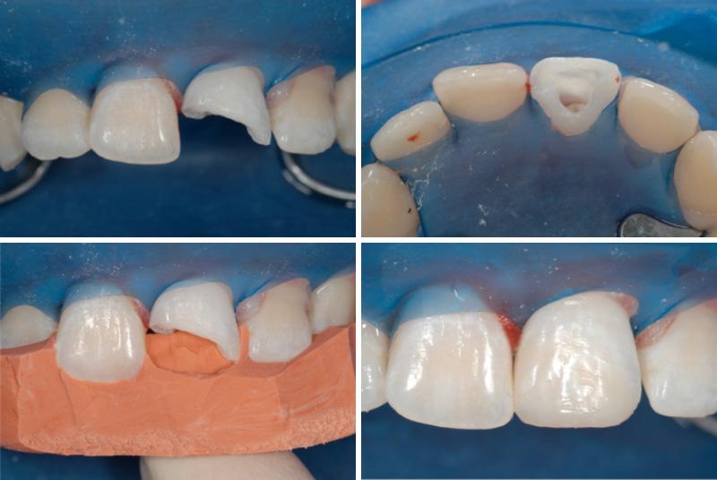 traumi dentali 01 studio dentistico michele damelio venezia mestre