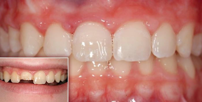I traumi dentali copertina - Studio Dentistico Michele D'Amelio a Mestre Venezia