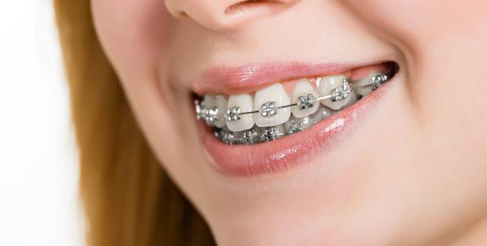 Apparecchio per i denti copertina - Studio Dentistico Michele D'Amelio a Mestre Venezia