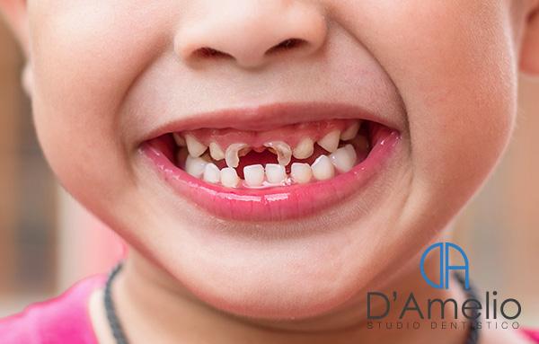 Carie dei denti da latte