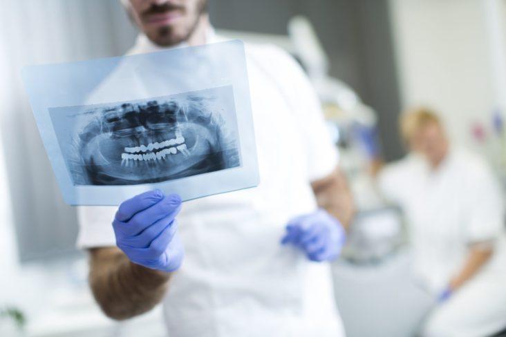 come si sostituisce una capsula dentale